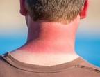 نصائح لعلاج حروق الشمس في فصل الصيف