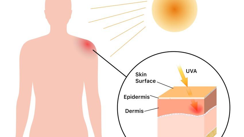 كيف تُسبب بعض الأدوية الحساسية الجلدية عند التعرض للشمس