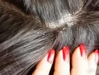 الظروف الجوية التالية تزيد من القشرة في الشعر