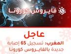 المغرب | تسجيل 65 إصابة جديدة بالفايروس كورونا وارتفاع الإجمالي لـ 1,184