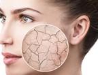 Comment prendre soin de la peau et de la peau pendant l'été