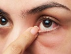 Tips to protect the eyes from drying out during the summer