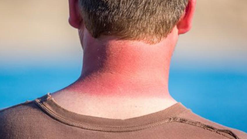 كيف تعالج حروق الشمس في فصل الصيف