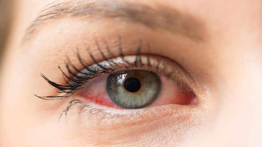تأثير تغيرات الطقس على جفاف العين