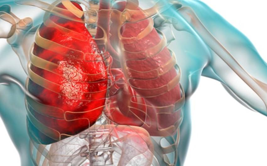 تأثير الطقس على صحة الرئتين