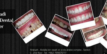 مركز الدكتور شادي الخطيب لطب الاسنان - Dr shadi alkhatib dental center