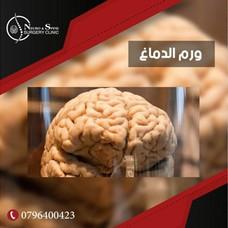 العيادة التخصصية لجراحة الدماغ والاعصاب والعمود الفقري ومعالجة الالم