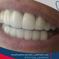 عيادة الدكتور ليث عملة لطب الأسنان