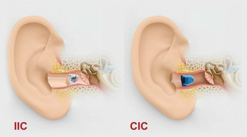 Nas medical and Hearing - شركة ناس للاجهزه الطبية والسمعيه